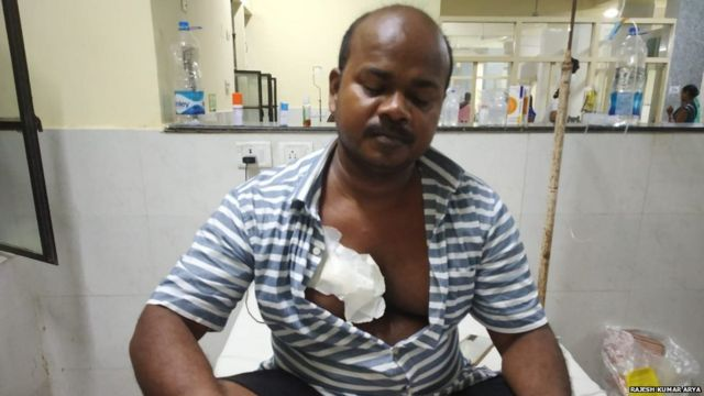 Anish's uncle Devi Dayal was also injured in the attack.