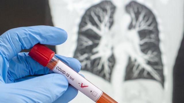 Un placa de los pulmones