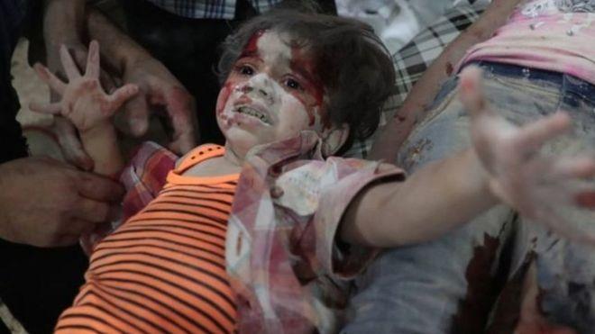 کودک زخمی سوری