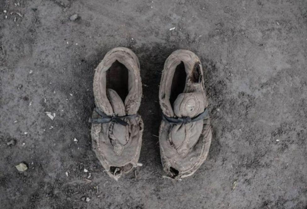 حذاء ممزق