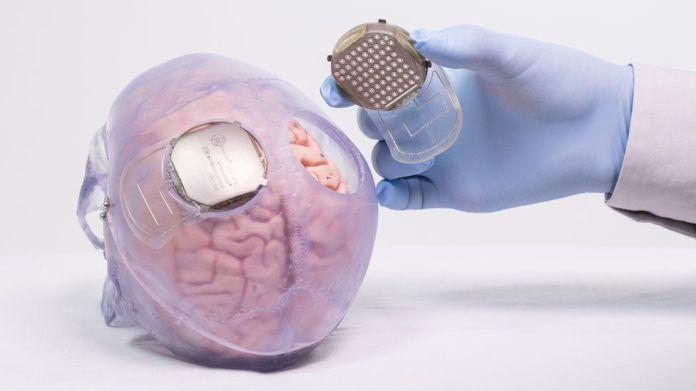 Sensor en el cerebro.