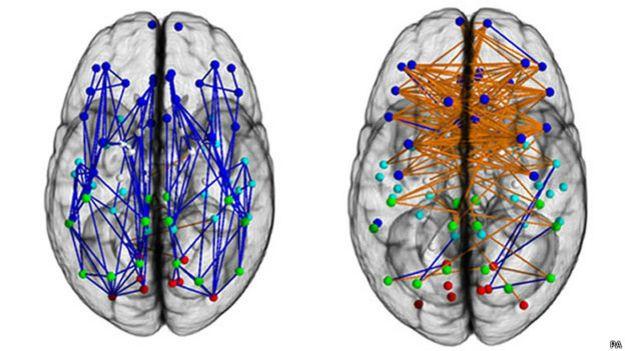 Conexiones del cerebro