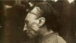 Una persona con el cráneo deformado
