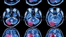 Scáner cerebral
