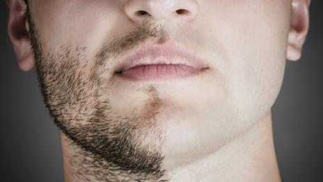 Men might have beards, but compared to other mammals we're pretty bare-faced (Thinkstock)