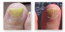指の爪水虫