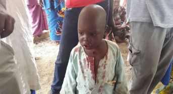 Hunger And Anger In Internally Displaced Persons Camp