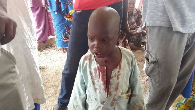 Little boy stabbed in IDP camp