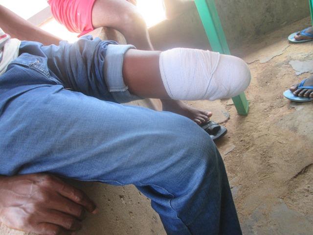 Johnson Nwibani's amputated leg 2