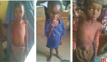 Malnourished children in the camp