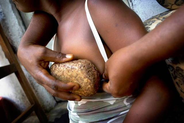 harmful traditional practices-breast ironing. credit: ICIR