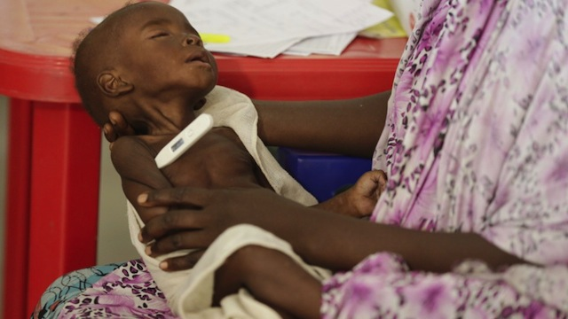 A malnourished child receiving care