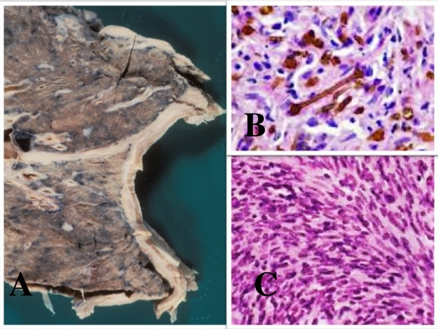 Image Result For Malignant Mesothelioma