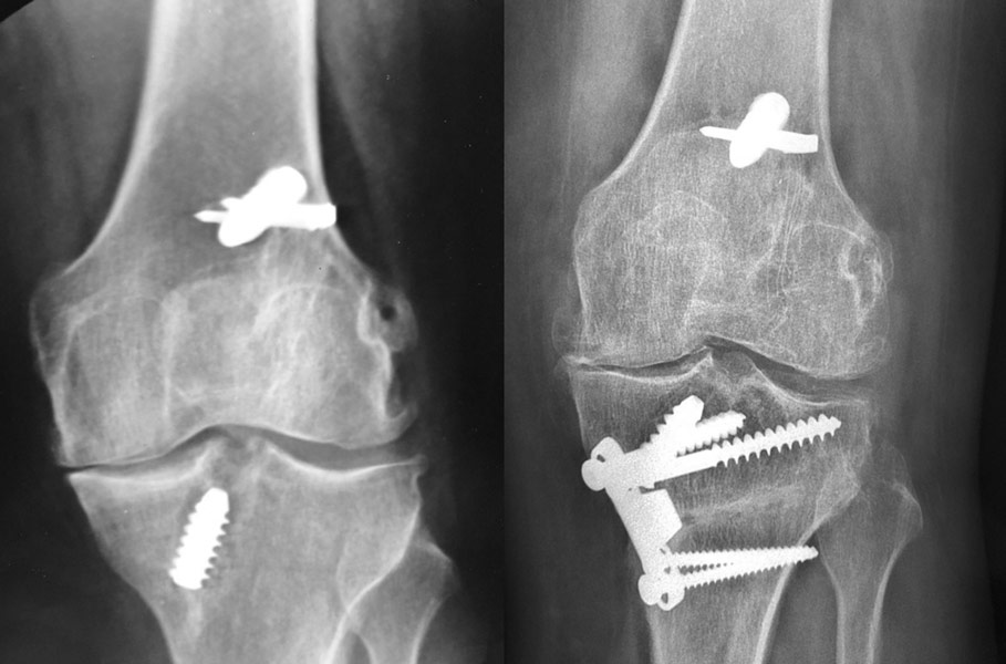 Ostéotomie tibiale de valgisation