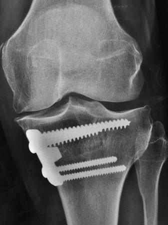 Ostéotomie tibiale avec plaque interne