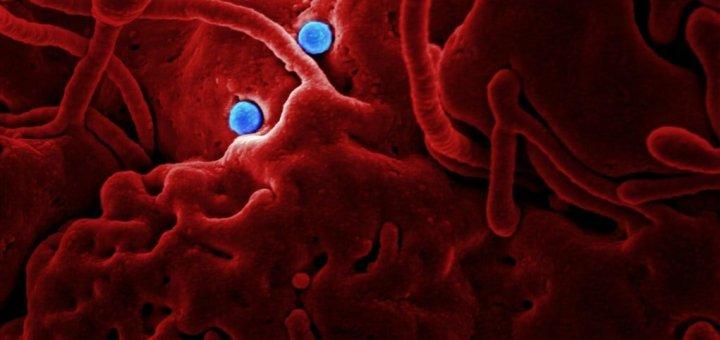 coronaviruses, coronavirus, corona virus, corona viruses