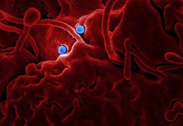 Coronavirus  Corona virus Coronaviruses Corona viruses