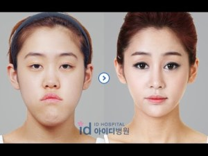 how much does plastic surgery cost in korea