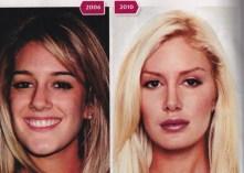 heidi-montag-plastic-surgery-2010-people