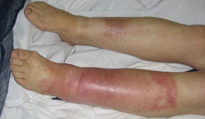 Воспаление кожи на ноге ниже колена