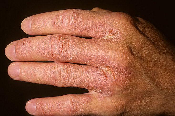 Раздражение на руках от моющих средств лечение. Как лечить раздражение кожи между пальцами рук. Причины раздражения
