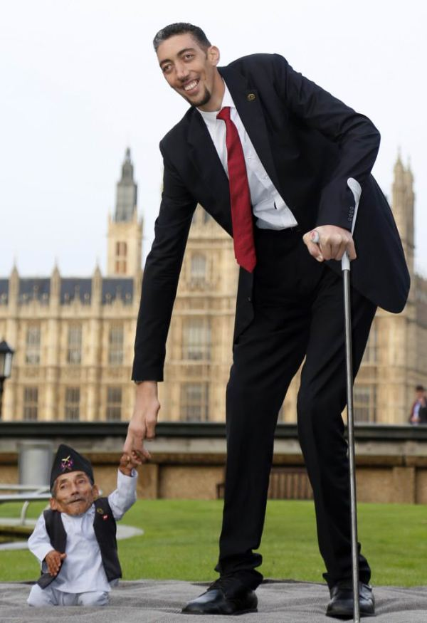 World's shortest man dies from pneumonia at 75 - Daily Sabah