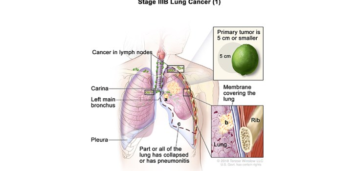 Stage III Lung Cancer illustration from National Cancer Institute