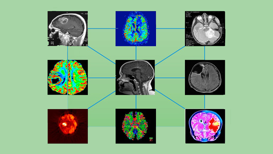 """medical imaging modalities, figure 2 from Capobianco, Enrico, and Marco Dominietto. """"From Medical Imaging to Radiomics: Role of Data Science for Advancing Precision Health."""" Journal of personalized medicine vol. 10,1 15. 2 Mar. 2020, doi:10.3390/jpm10010015"""