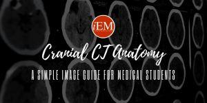 cranial ct anatomy