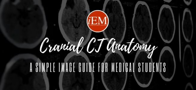 cranial ct anatomy