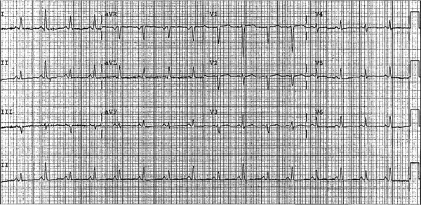 ECG source - Dr. Smith's ECG blog