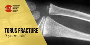 torus fracture
