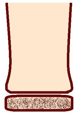 Salter-Harris Type V