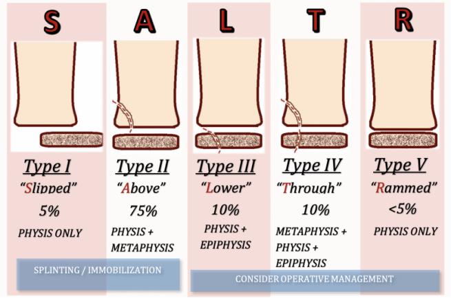 Salter-Harris Classification