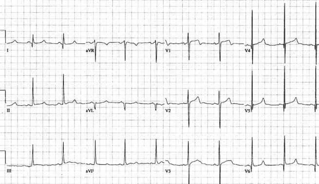 HCM-pattern-with-asymmetrical-septal-hypertrophy