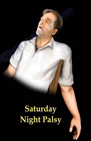 saturday-night-palsy