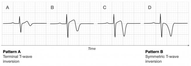 Biphasic or deep inverted T waves in V2 V3
