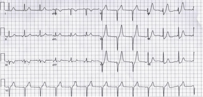 Prominent T wave with upsloping ST depression in precordial leads