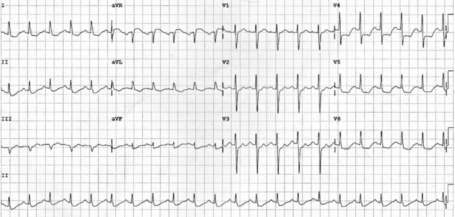 ST elevation in aVR with diffusion ST depression