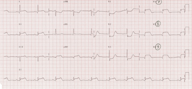 Same patient with posterior EKG showing ST elevation in posterior leads