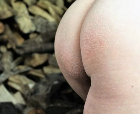S is for spanking eczema submission