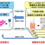 歯髄幹細胞を用いた再生医療事業の概念図