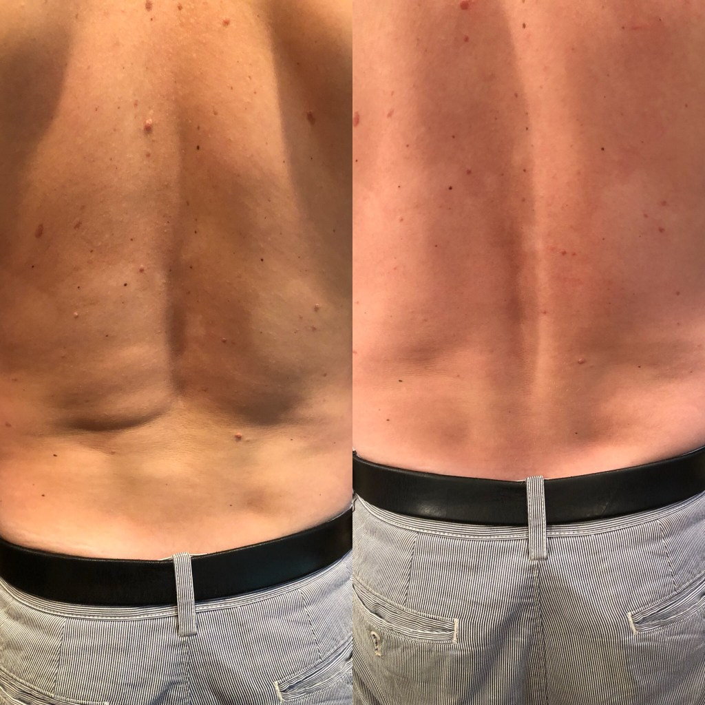 Soft tissue work (L before, R after)