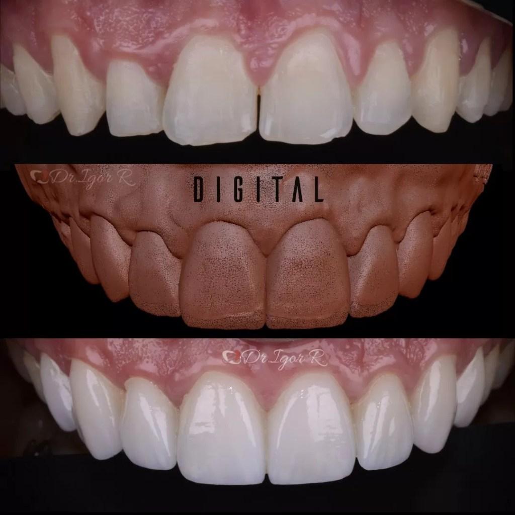 Lente de contato dental odontologia digital | Dentes em Porcelana Bl2 | Sorriso Antes e Depois | dentista em fortaleza