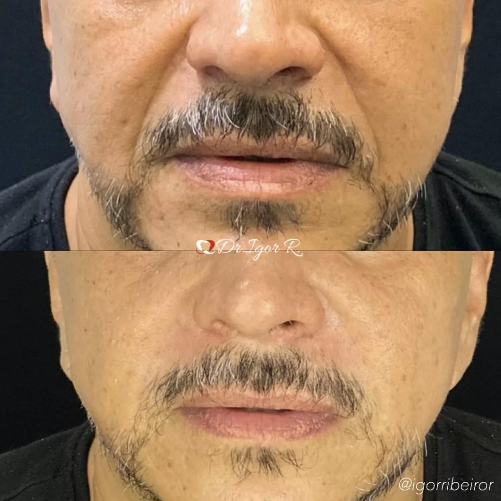 Antes & Depois harmonização facial