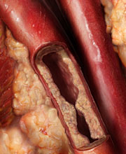plaque in arteries