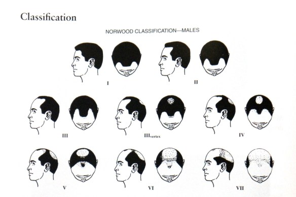 hair of classification