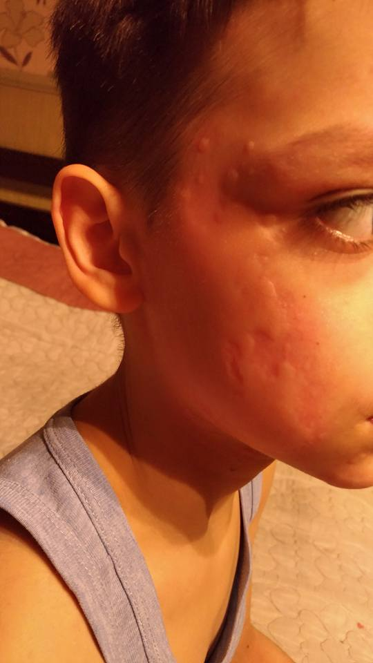 У ребенка аллергия по всему телу. Сказали крапивница ...