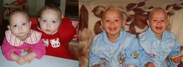 дети до и после усыновления 18
