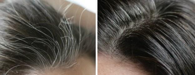 Массаж головы с маслом поможет частично устранить проблему седых волос